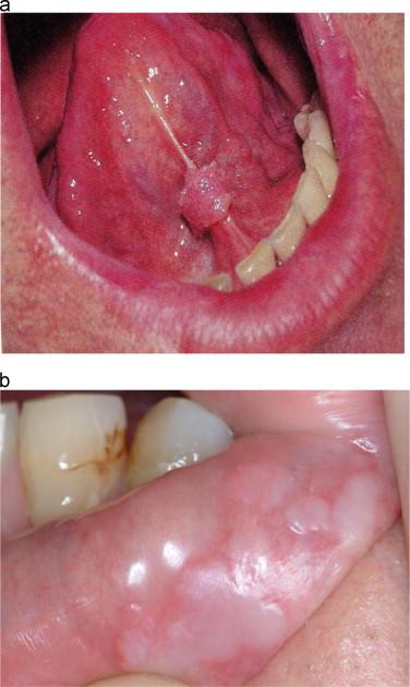 hpv tongue warts