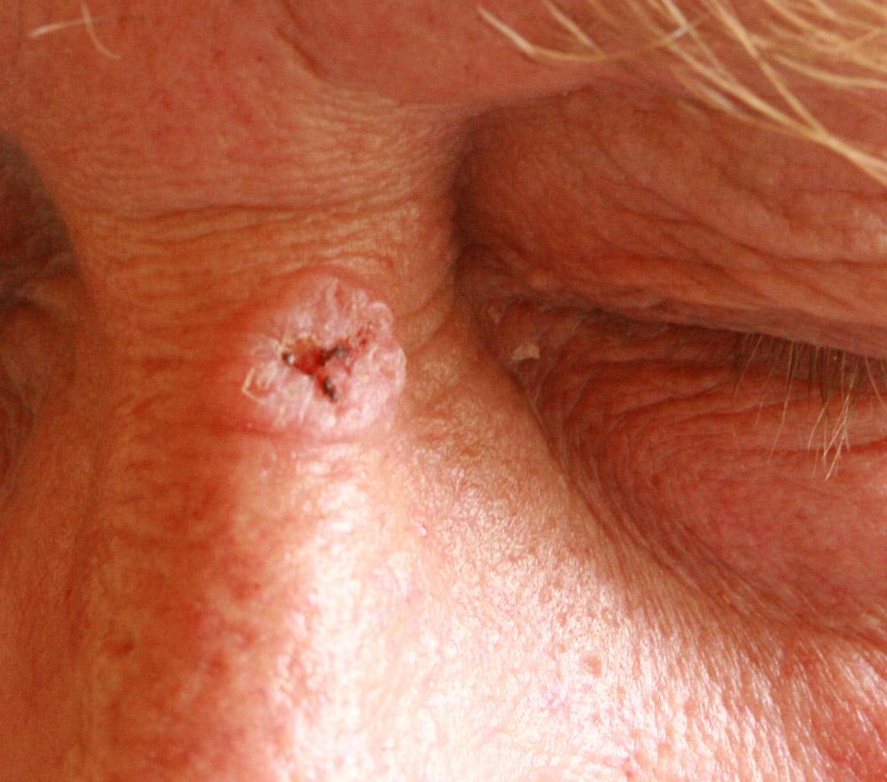 papilloma planoepitheliale keratodes