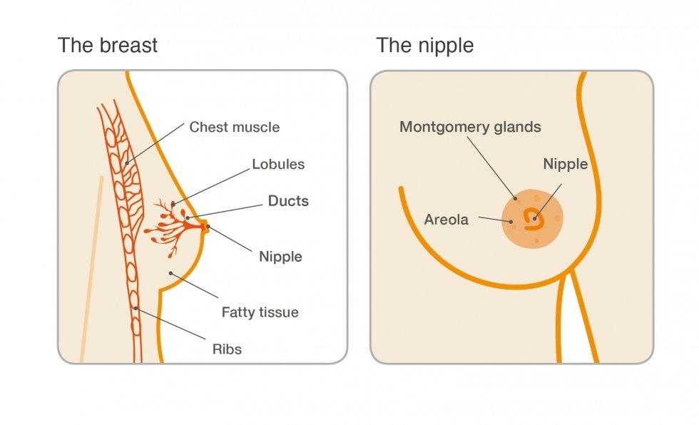 Solitary intraductal papillomas.