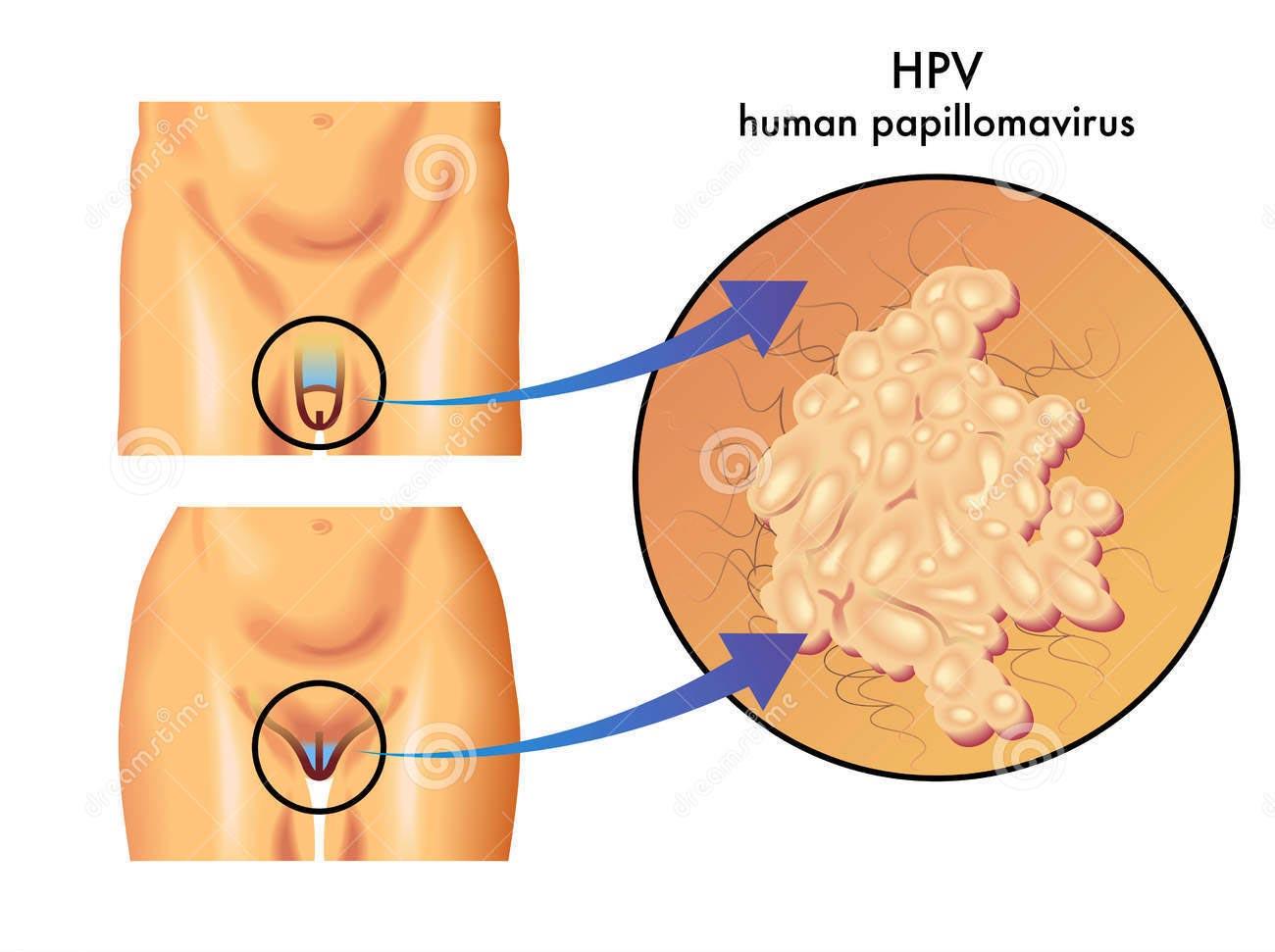 hpv papilloma virus sintomi