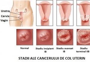 cancer ovarian primele simptome papilloma virus trasmissione tra donne