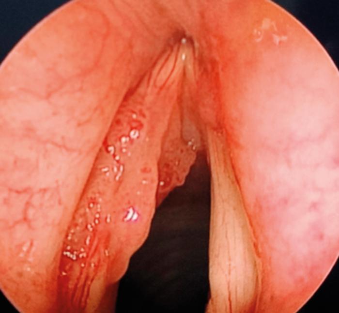 anticorp vierme pozitiv peritoneal cancer icd 10