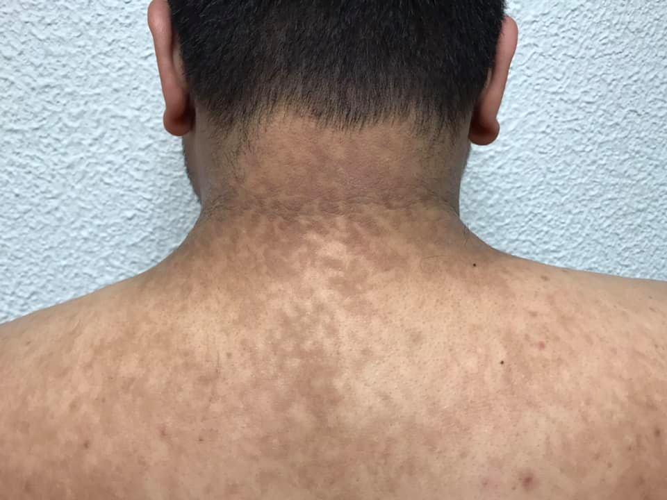 Papilomatosis confluente tratamiento, Papilloma hpv tratament