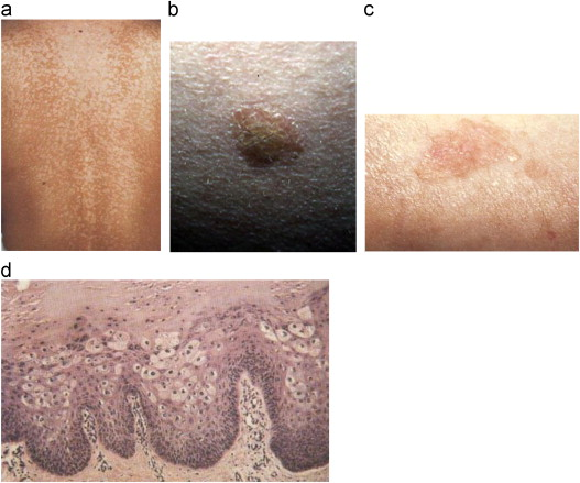 Pin on Sanatate, Hpv and skin disorders, Hpv on the skin