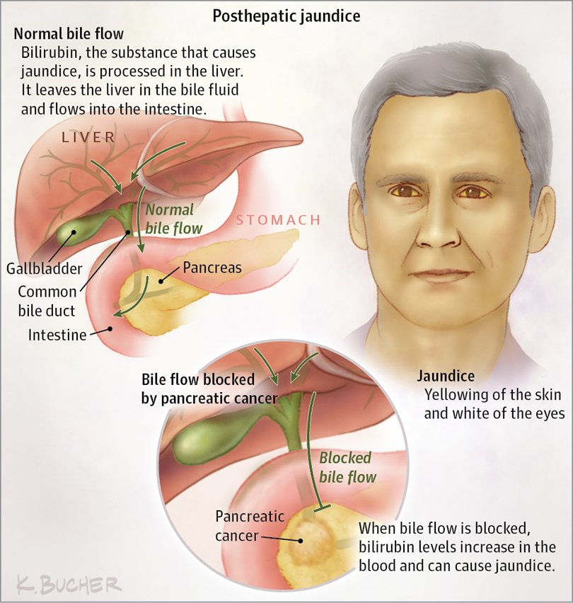 Gastric cancer jaundice