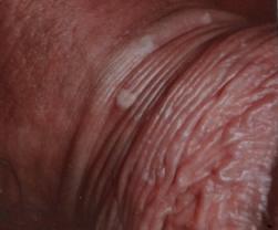 Infezione da papilloma virus sintomi, Metastatic cancer kaise hota hai