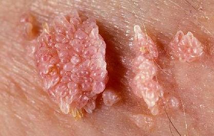 micropapilomatoza verucilor genitale