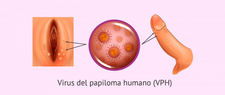 Virus de papiloma que es
