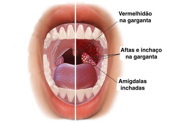 Hpv y cancer de garganta, Sintomas cancer garganta por virus papiloma humano