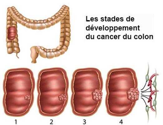 cancer colon ganglions atteints