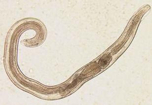 enterobius vermicularis kingdom