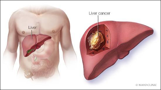 Cancerul hepatic: cauze, simptome, tratament