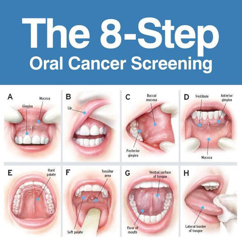 Papilloma of mouth HPV - virusul care declanseaza si cancerul oral, Hpv lip lesions