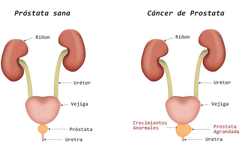 cancer uretra hombre