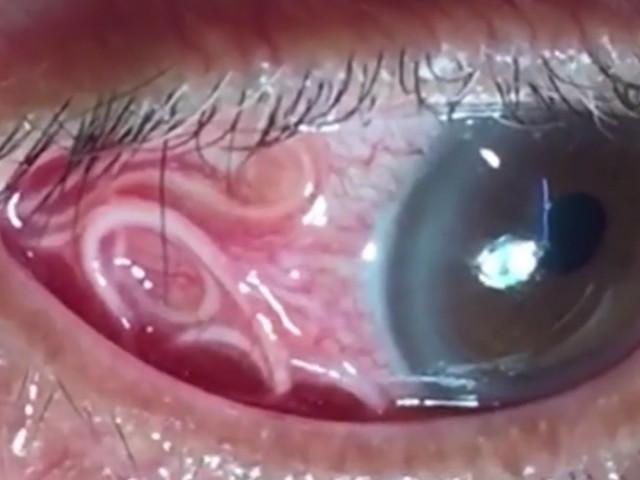 parazit în ochi tratamentul viermilor negri
