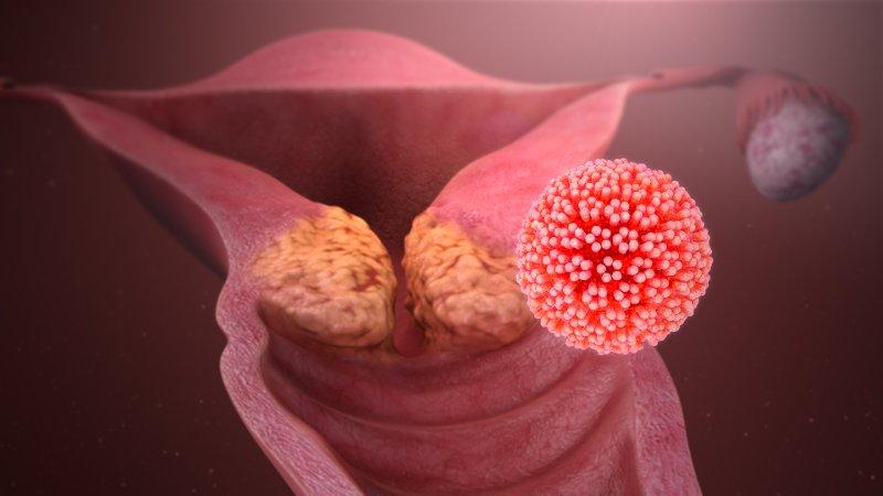 papilloma virus biopsia