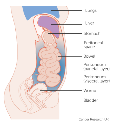Cancerul ovarian cu mutație BRCA