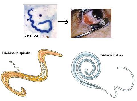 filum nemathelminthes dan contohnya medicamente pentru ouăle de viermi