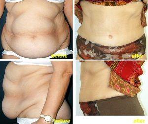 Procedura de Abdominoplastie