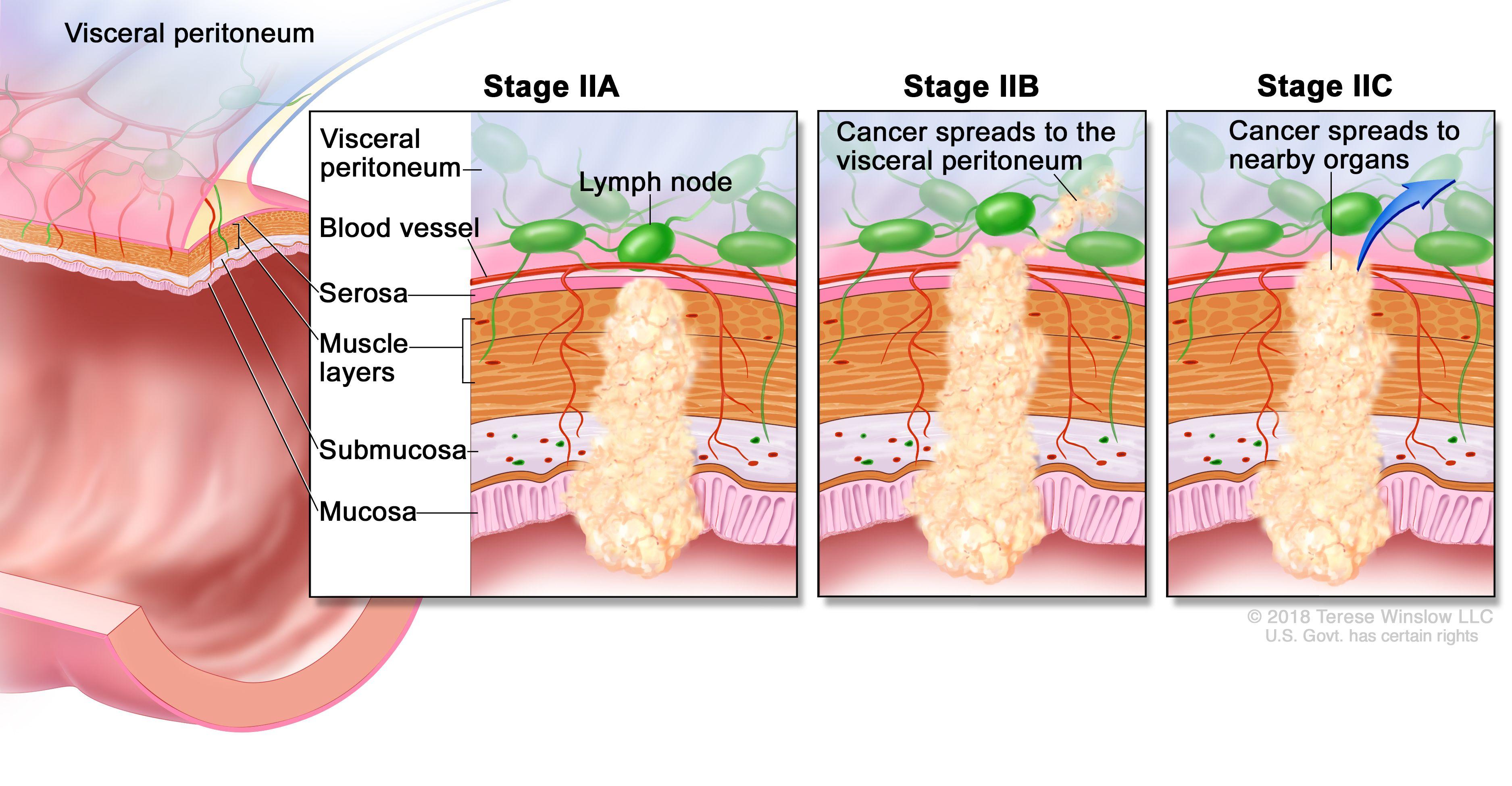 cancer rectal t3