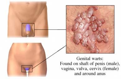 condiloame în gură la femei cancer de colon ultima etapa sintomas
