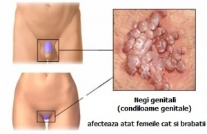 simptome cancer zona genitala