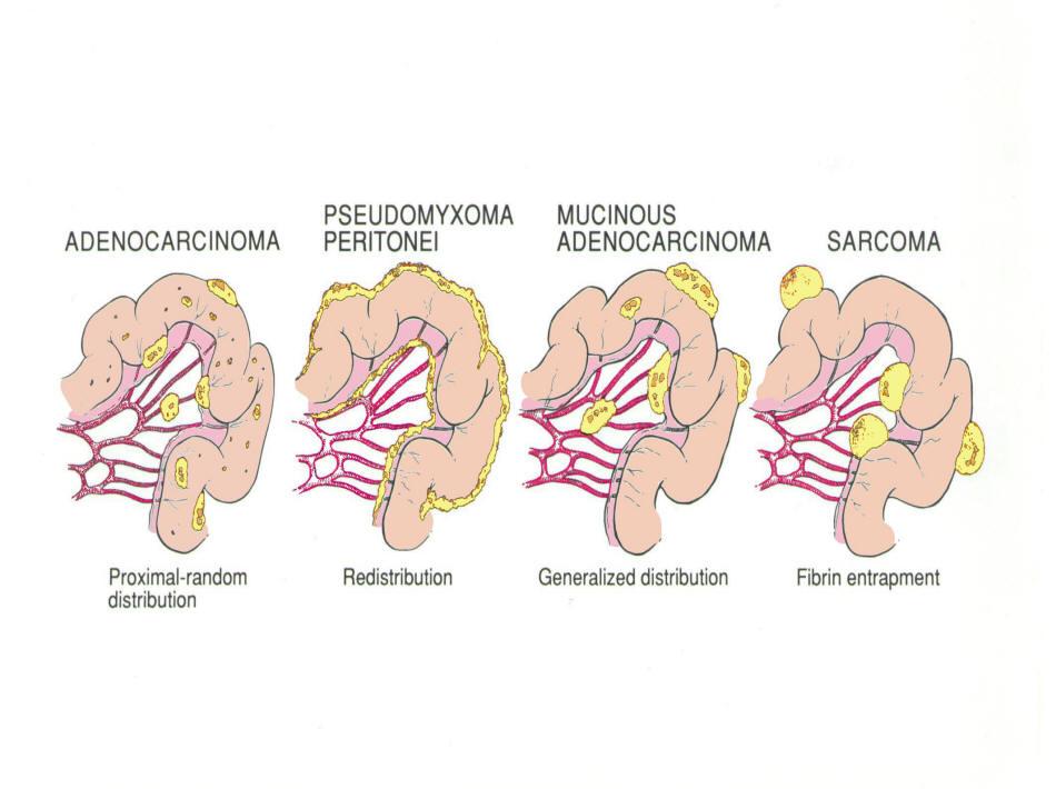 Benign cancer of bone. Oxiuros incubacion