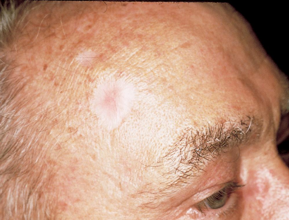 cancer facial que es pancreatic cancer trials