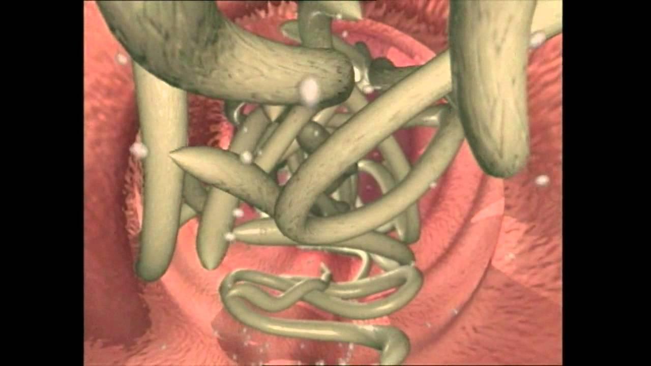 viermi intestinali - Traducere în franceză - exemple în română | Reverso Context