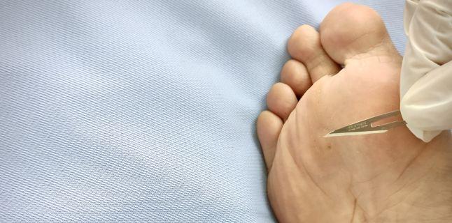 negi pe piciorul unui copil cum se tratează
