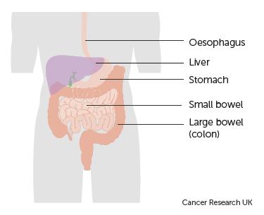 peritoneal cancer bowel blockage pentru copii pentru a preveni viermii