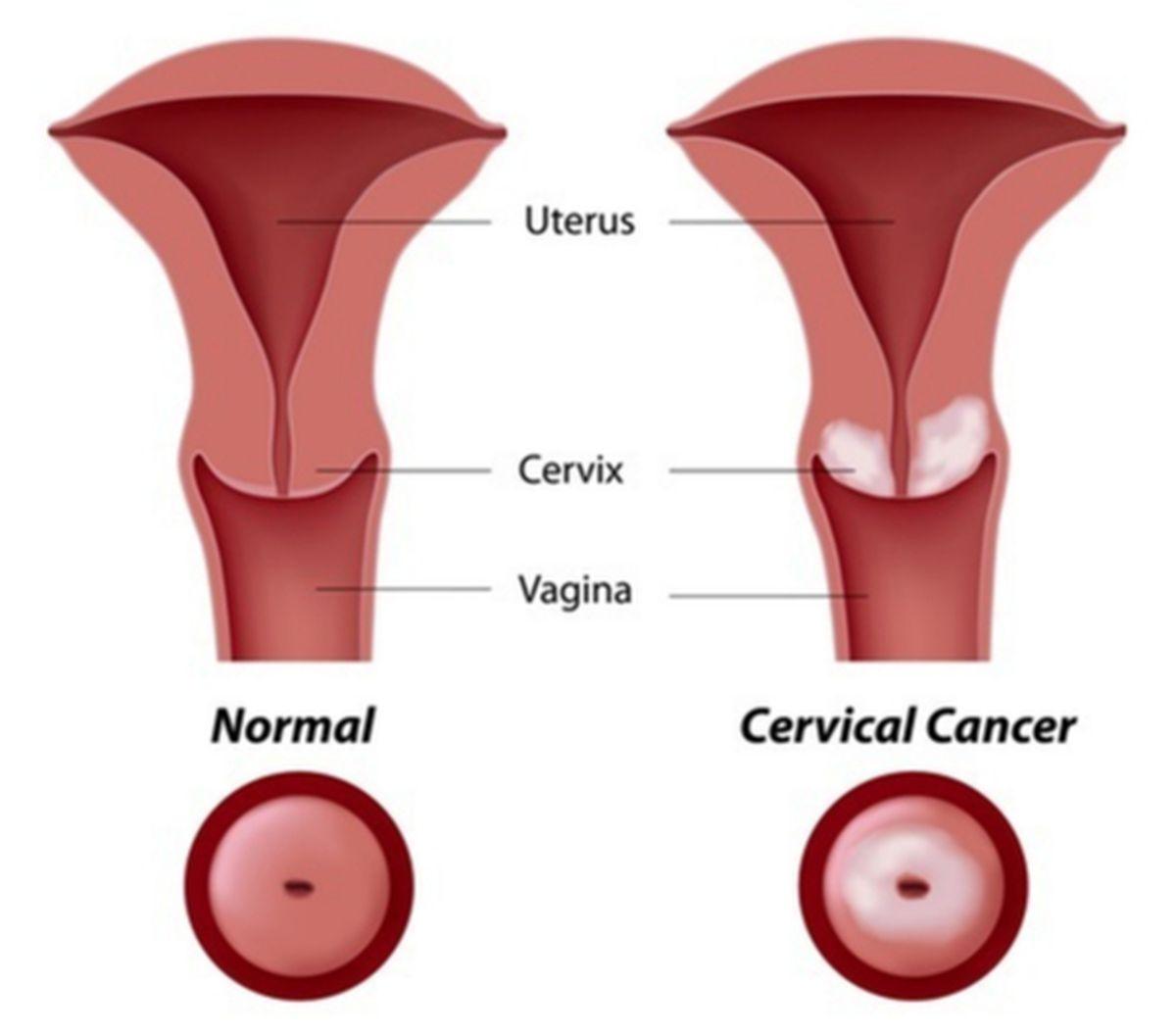 Cancerul de col uterin – cauze, prevenție și tratament ⋆ Halmasan