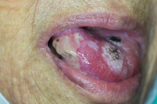 Unguente HPV pentru bărbați colorectal cancer jobs