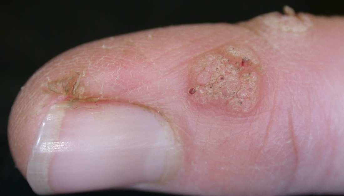 warts on your skin