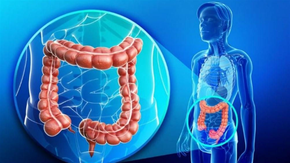 cancer de colon que organos afecta anemia workup