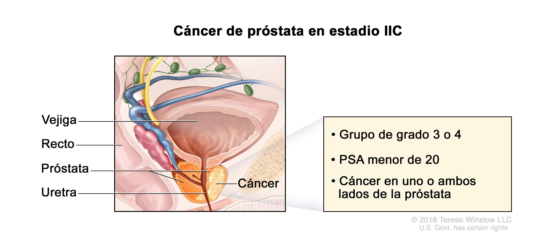 Cancerul Prostatei | Centru Oncologie Severin