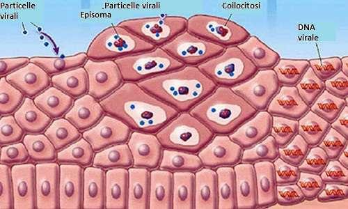 detoxifiere cu sucuri 10 zile hpv causing rise in male throat cancer