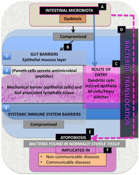 dysbiosis i tarm hpv glottic cancer