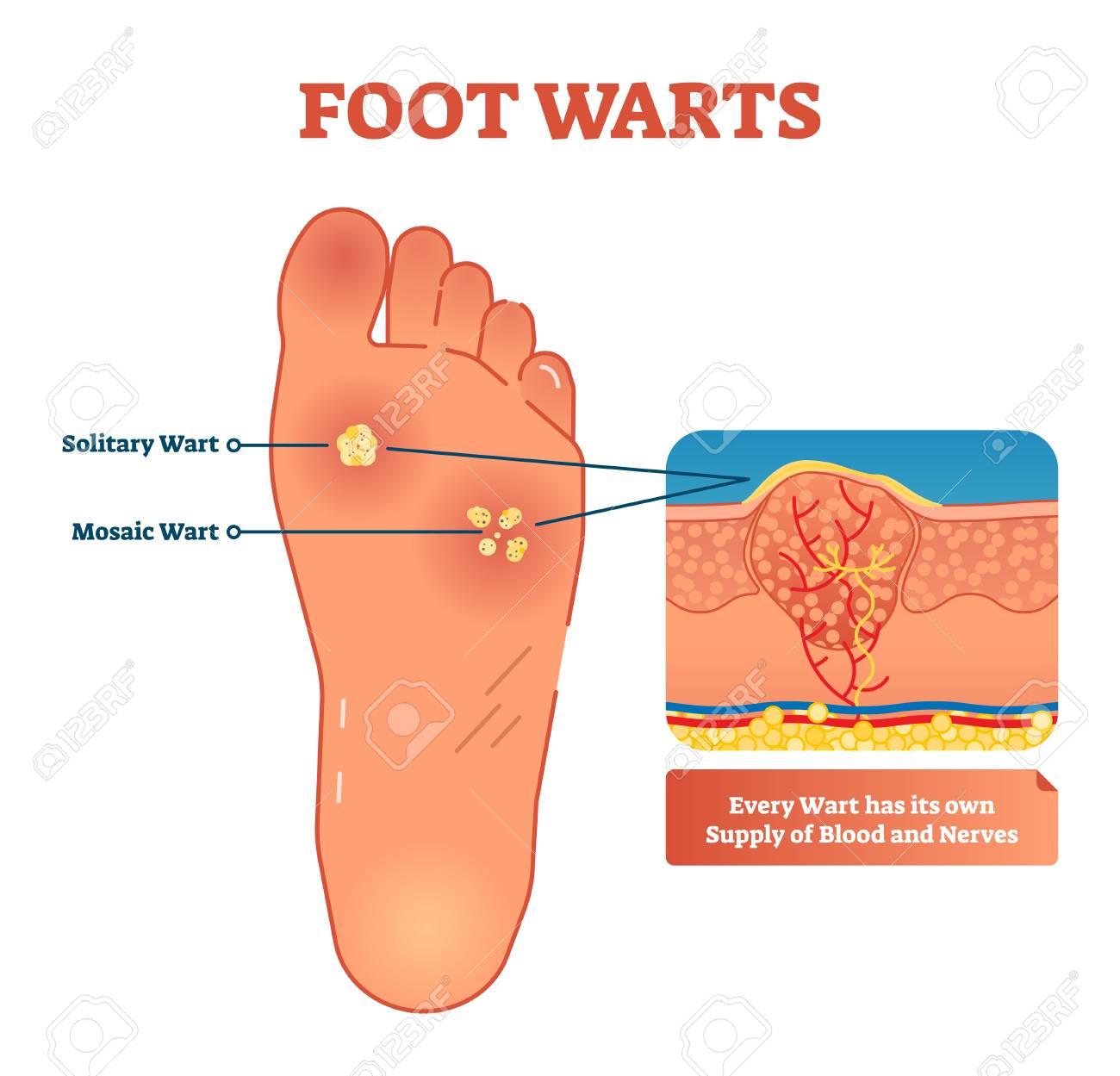 helminti la maturi cryopharma pentru picioare