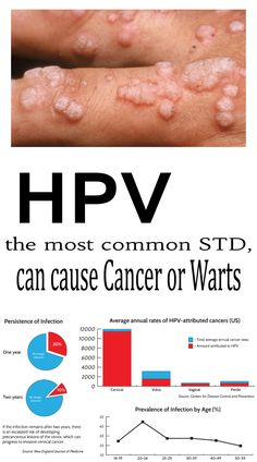 can hpv virus cause weight loss infecții cu helmint și cancer