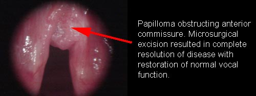 Is laryngeal papillomatosis a std Solitary papilloma of larynx - thecroppers.ro