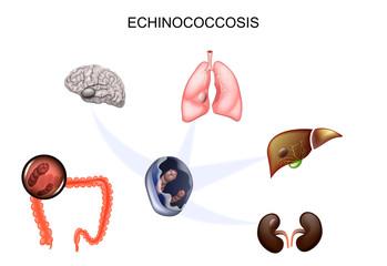 Chistul hidatic pulmonar (Hidatidoza): diagnostic și tratament