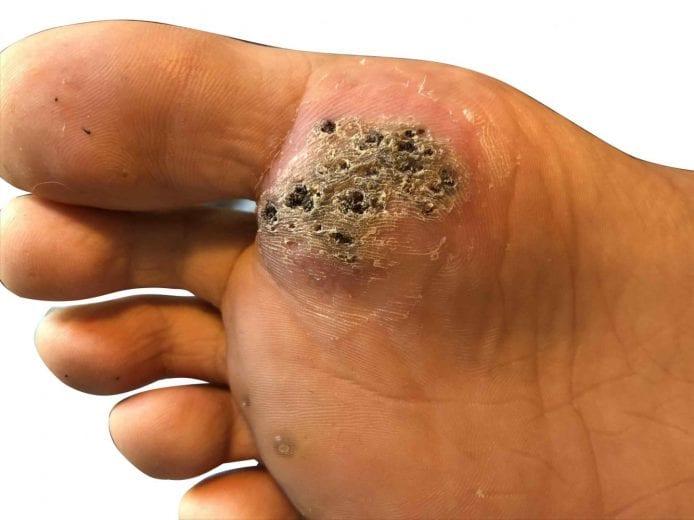 Plantar wart on foot black dots - Wart treatment in foot