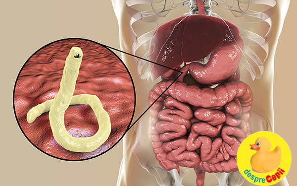 cum să scapi de paraziți în intestine