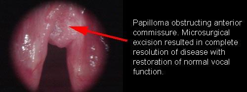 Multiple laryngeal papilloma, Laryngeal papilloma etiology, Hpv wart in finger