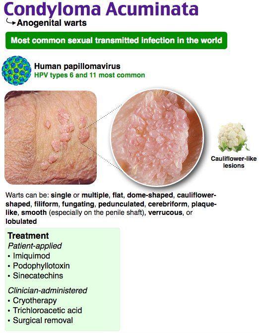 HPV genotipare în leziune/raclat (regiunea anogenitală și orală) - Synevo