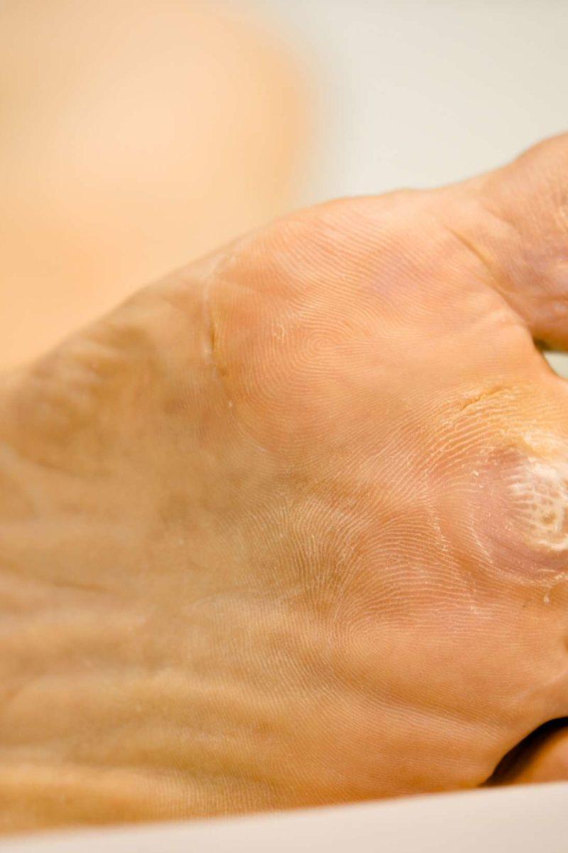 medicamente antihelmintice eficiente pentru om detox curăță mișcările intestinale