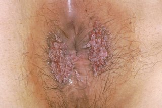 Hpv warts never came back. Virus del papiloma guayaquil