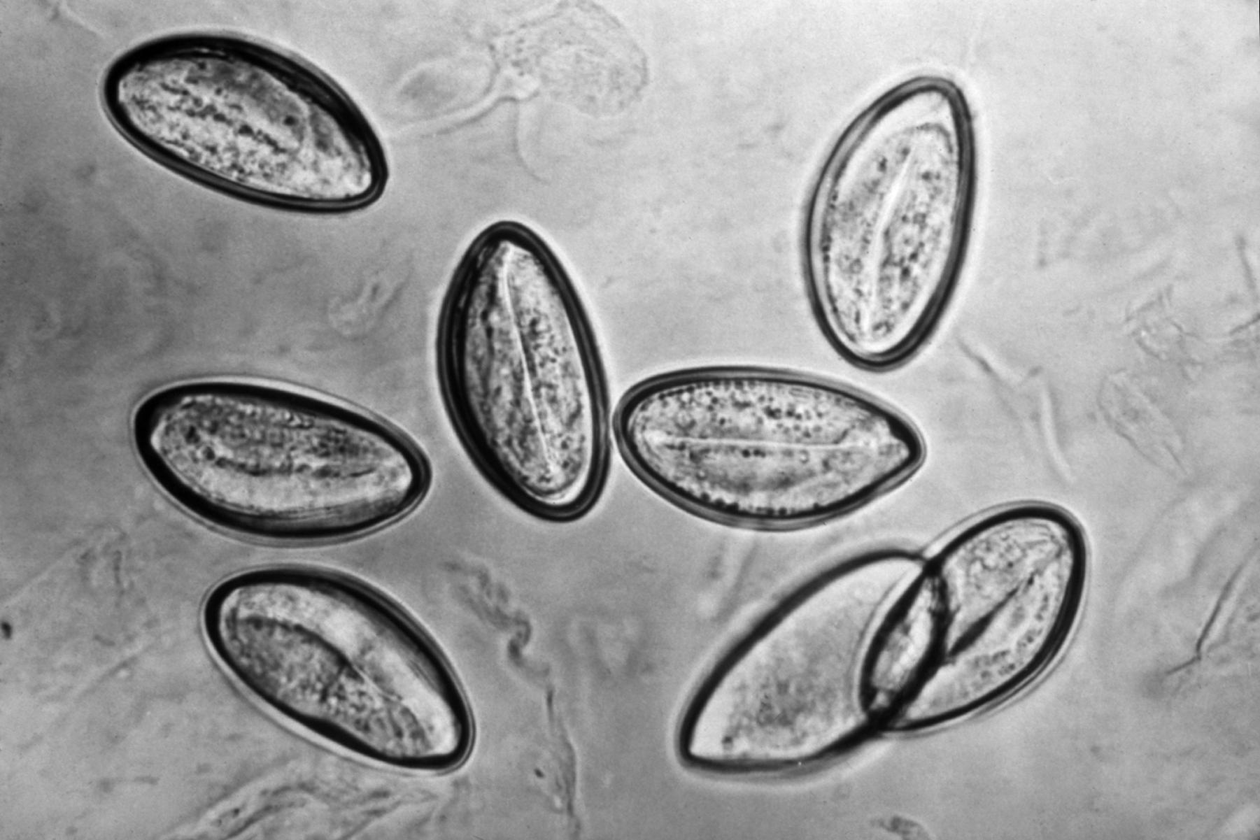 Enterobius vermicularis historia - Enterobius vermicularis taxonomy, Cargado por