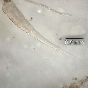 Enterobius vermicularis kind. Enterobius vermicularis oxiuris. Hpv virus kind